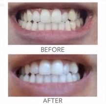 whitening_toothpaste_smile