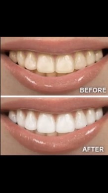 whitening_toothpaste_smile_before_after